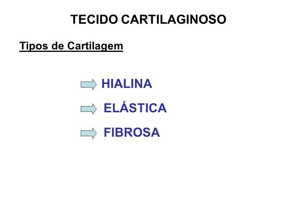 TECIDO CARTILAGINOSO Tipos de Cartilagem HIALINA ELÁSTICA FIBROSA