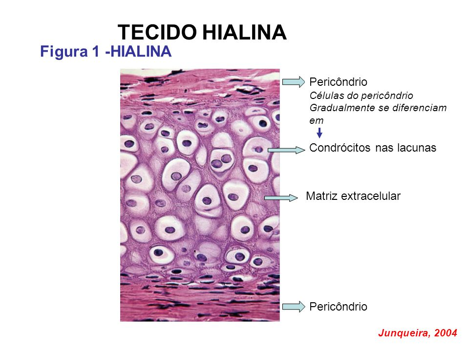 TECIDO HIALINA Figura 1 -HIALINA Pericôndrio Condrócitos nas lacunas