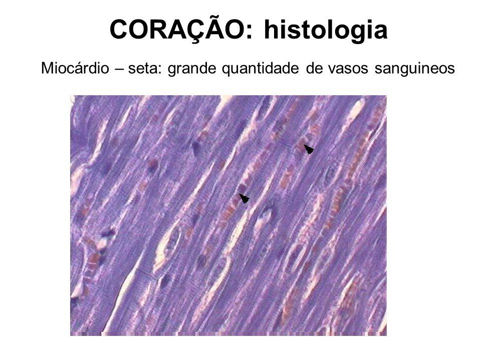 CORAÇÃO: histologia Miocárdio – seta: grande quantidade de vasos sanguineos