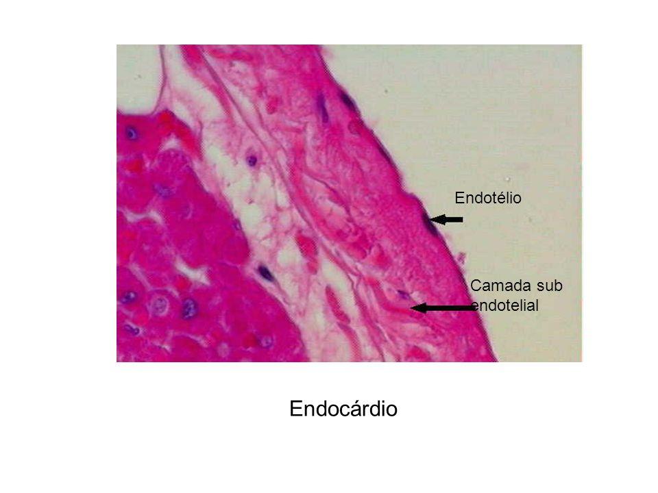 Endotélio Camada sub endotelial Endocárdio