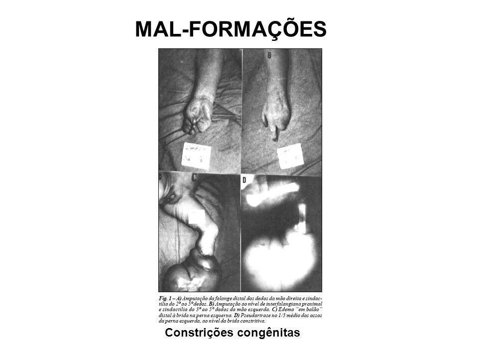MAL-FORMAÇÕES Constrições congênitas