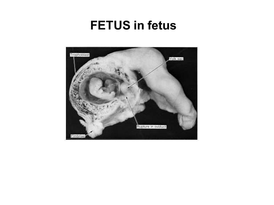 FETUS in fetus