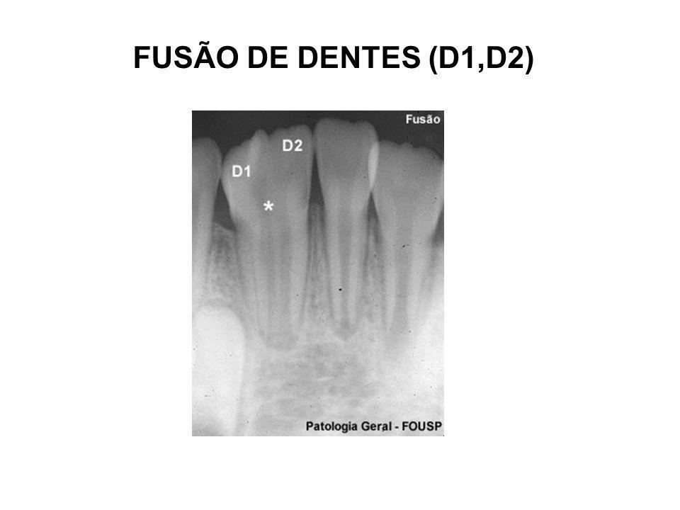FUSÃO DE DENTES (D1,D2)