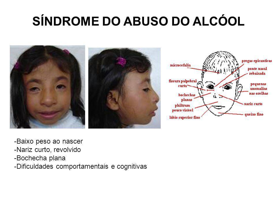 SÍNDROME DO ABUSO DO ALCÓOL