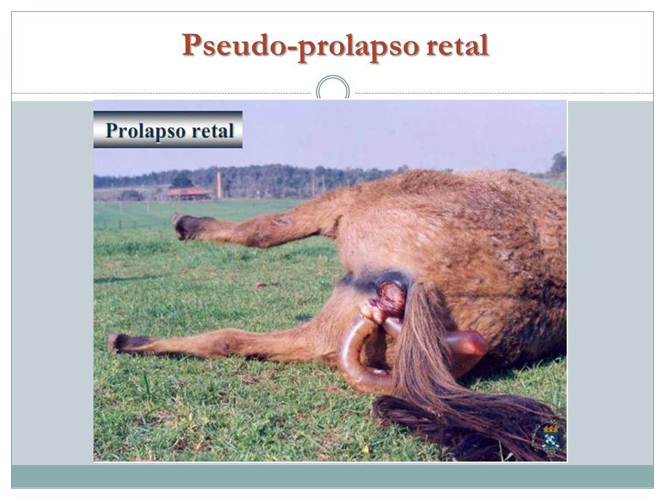 Pseudo-prolapso retal