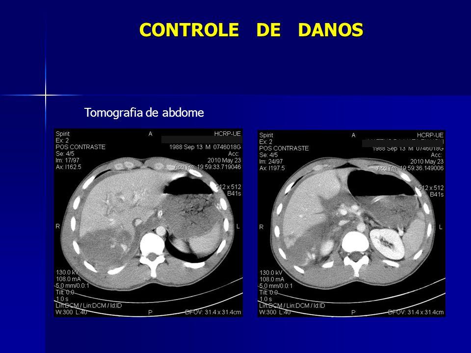 CONTROLE DE DANOS Tomografia de abdome