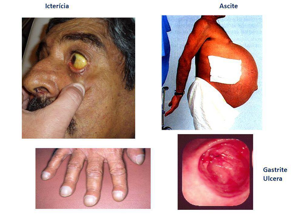 Icterícia Ascite Gastrite Ulcera