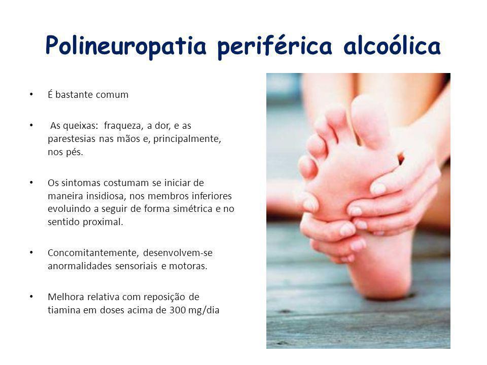 Polineuropatia periférica alcoólica