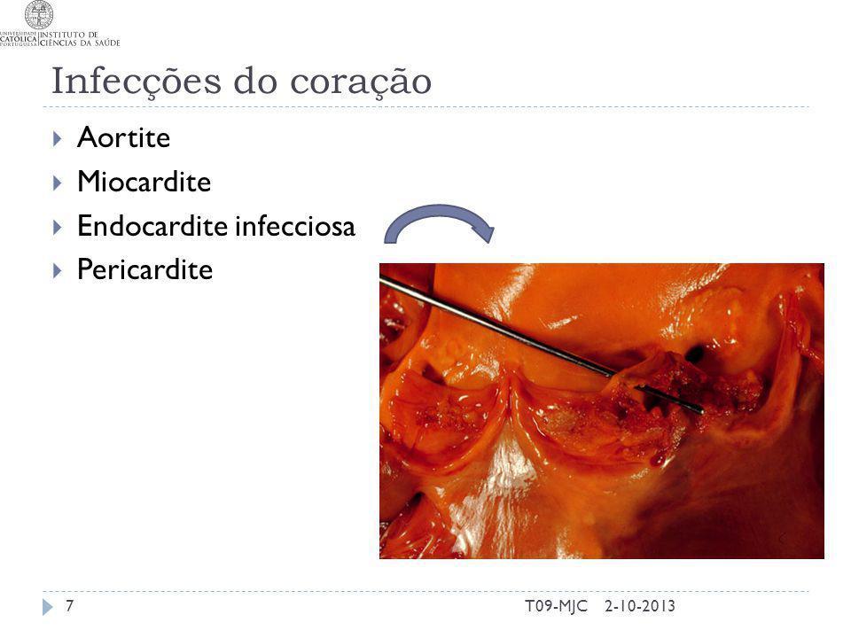 Infecções do coração Aortite Miocardite Endocardite infecciosa