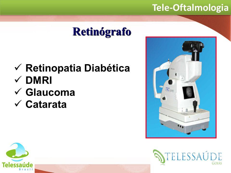 Retinógrafo Tele-Oftalmologia Retinopatia Diabética DMRI Glaucoma