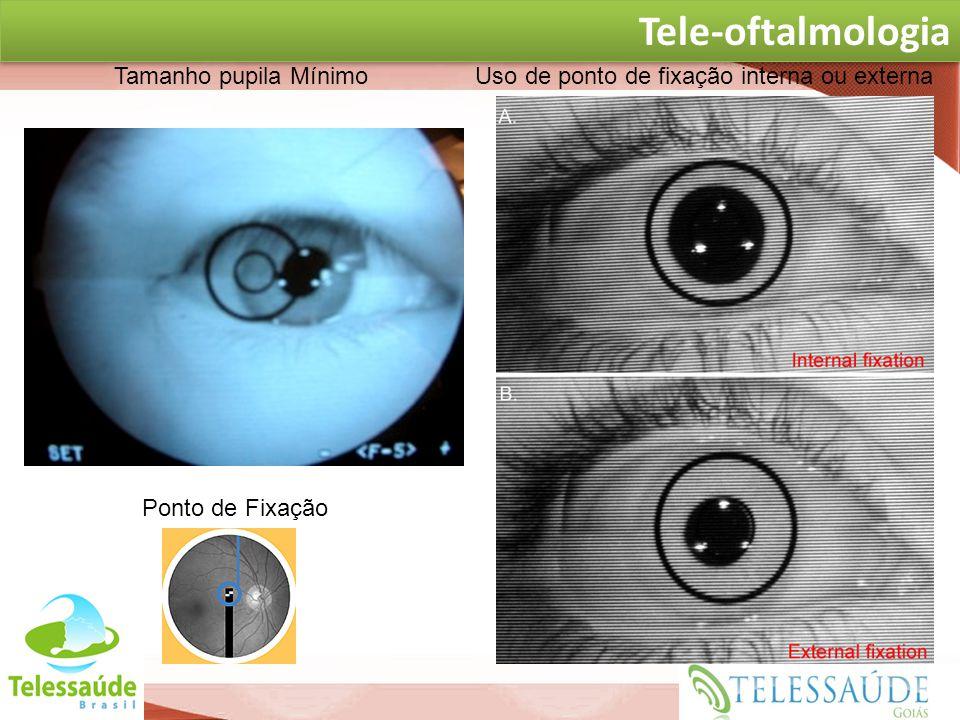 Tele-oftalmologia at TELE-OFTALMOLOGIA