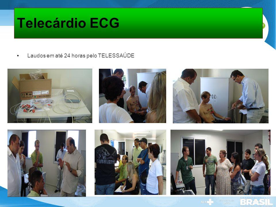 Telecárdio ECG Laudos em até 24 horas pelo TELESSAÚDE