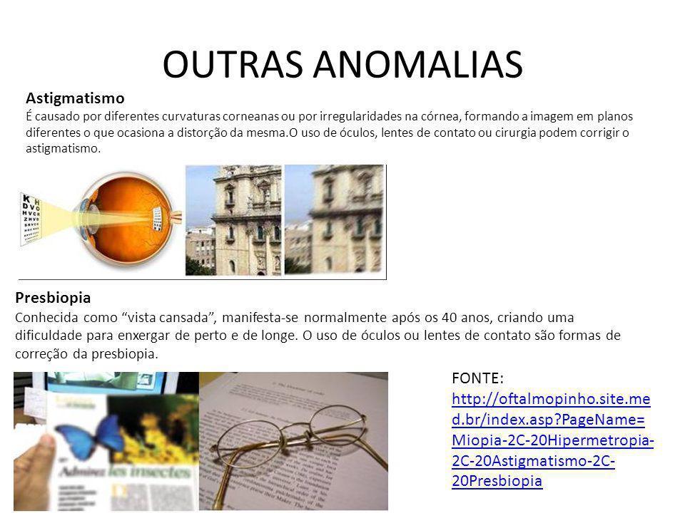 OUTRAS ANOMALIAS Astigmatismo Presbiopia FONTE: