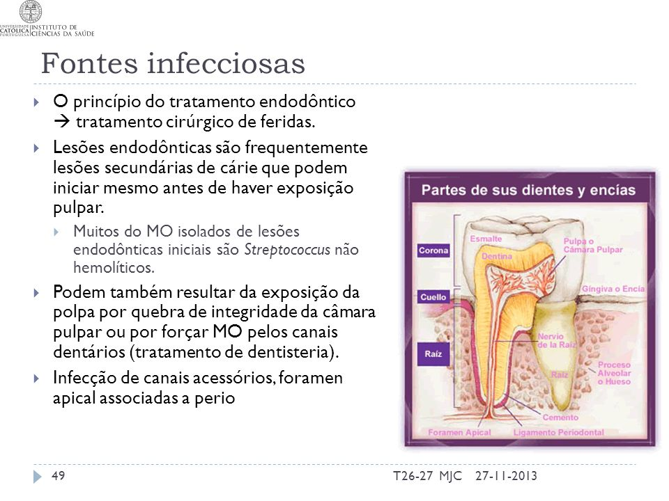 Fontes infecciosas O princípio do tratamento endodôntico  tratamento cirúrgico de feridas.