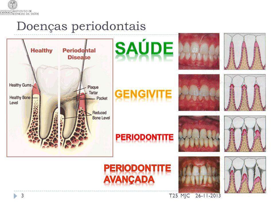 Saúde Doenças periodontais GEngivite Periodontite Avançada