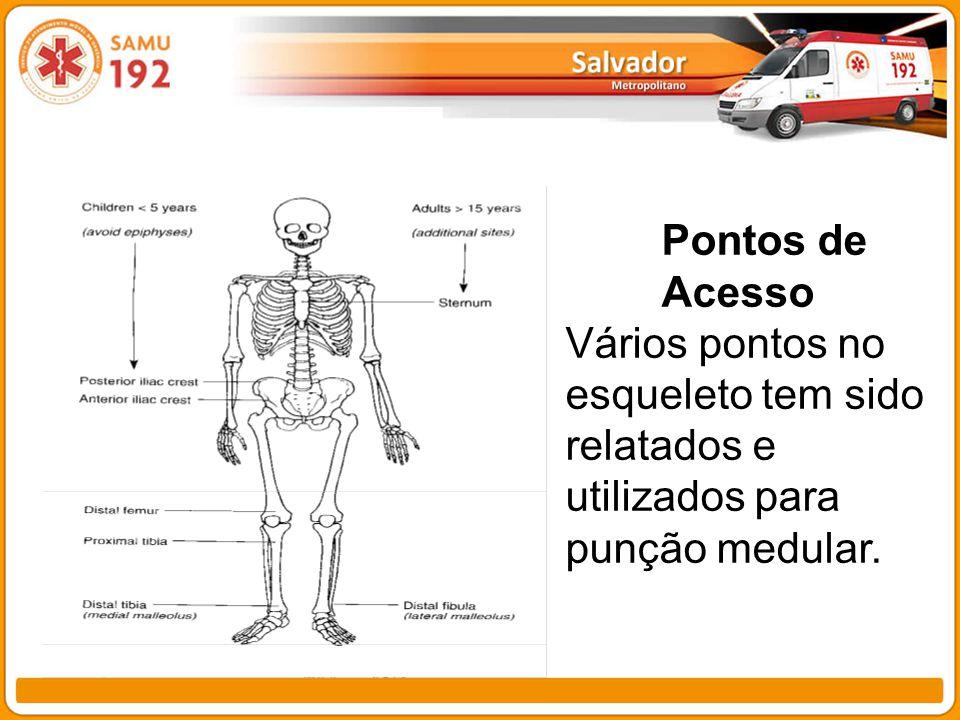 Pontos de Acesso Vários pontos no esqueleto tem sido relatados e utilizados para punção medular.