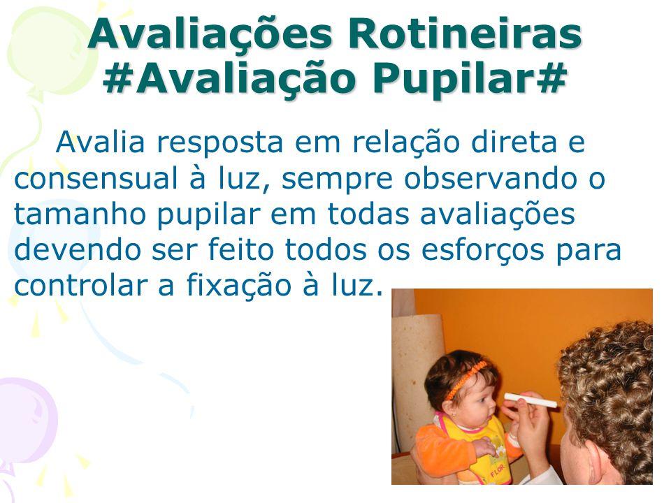 Avaliações Rotineiras #Avaliação Pupilar#