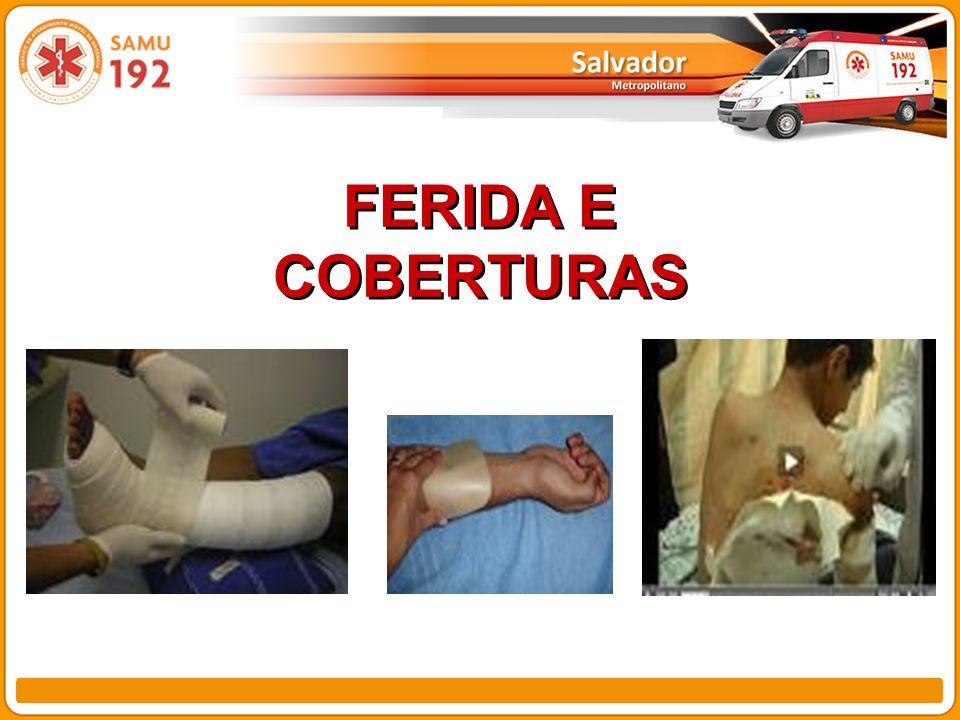 FERIDA E COBERTURAS