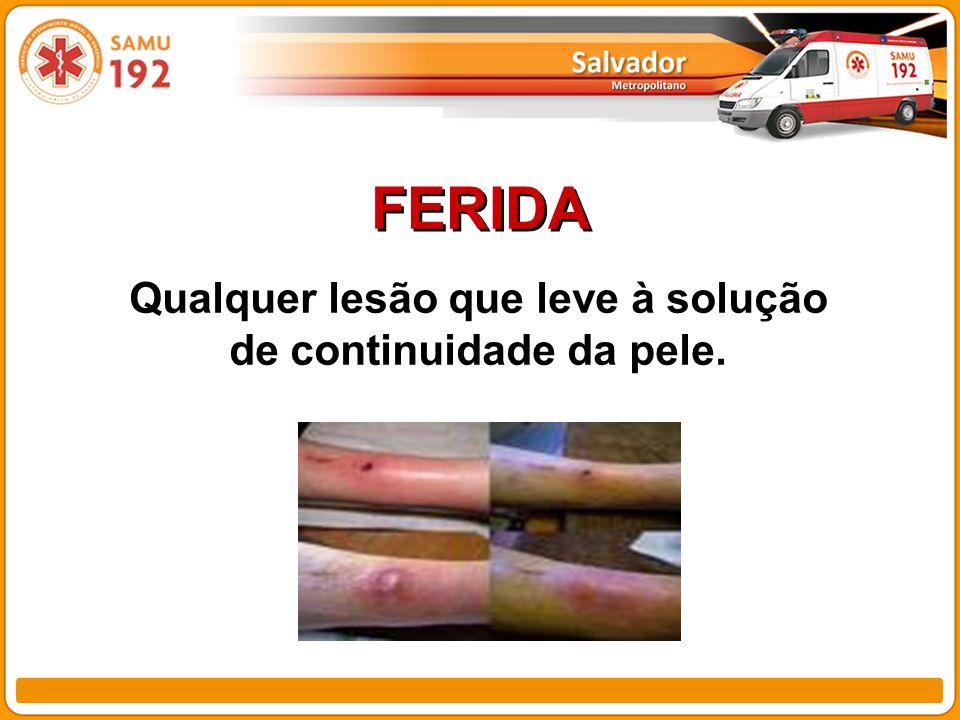 Qualquer lesão que leve à solução de continuidade da pele.