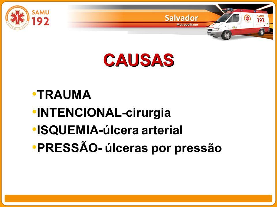 CAUSAS TRAUMA INTENCIONAL-cirurgia ISQUEMIA-úlcera arterial
