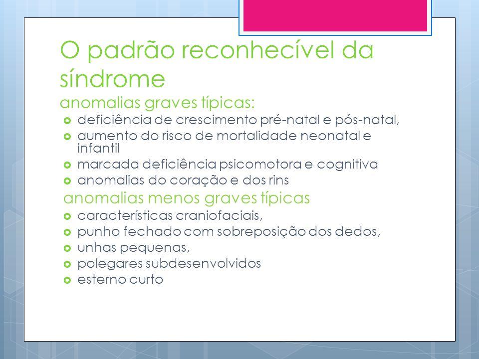 O padrão reconhecível da síndrome anomalias graves típicas: