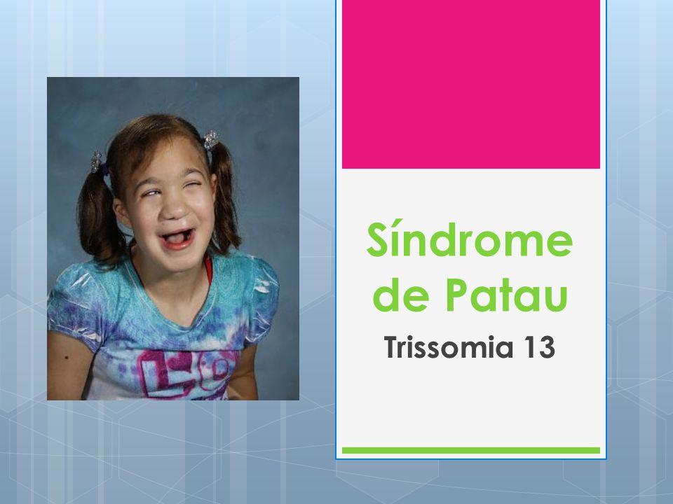Síndrome de Patau Trissomia 13