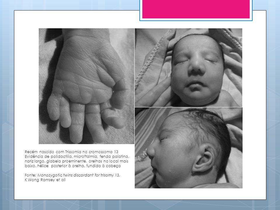 Recém nascido com Trissomia no cromossoma 13
