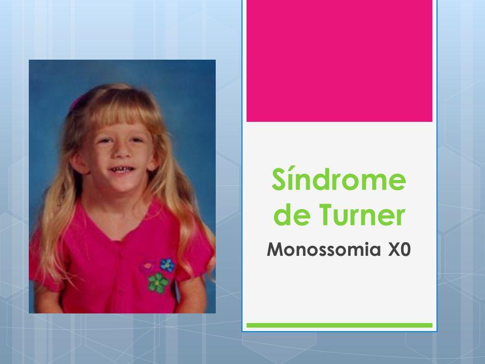 Síndrome de Turner Monossomia X0 Ocorre apenas em mulheres;