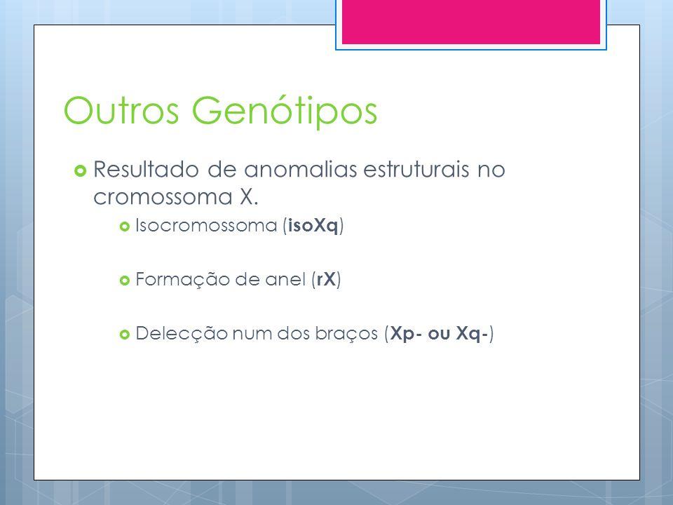 Outros Genótipos Resultado de anomalias estruturais no cromossoma X.