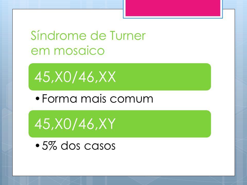 Síndrome de Turner em mosaico