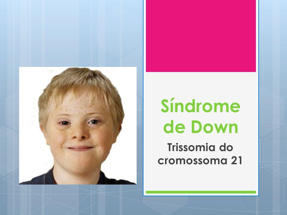 Trissomia do cromossoma 21