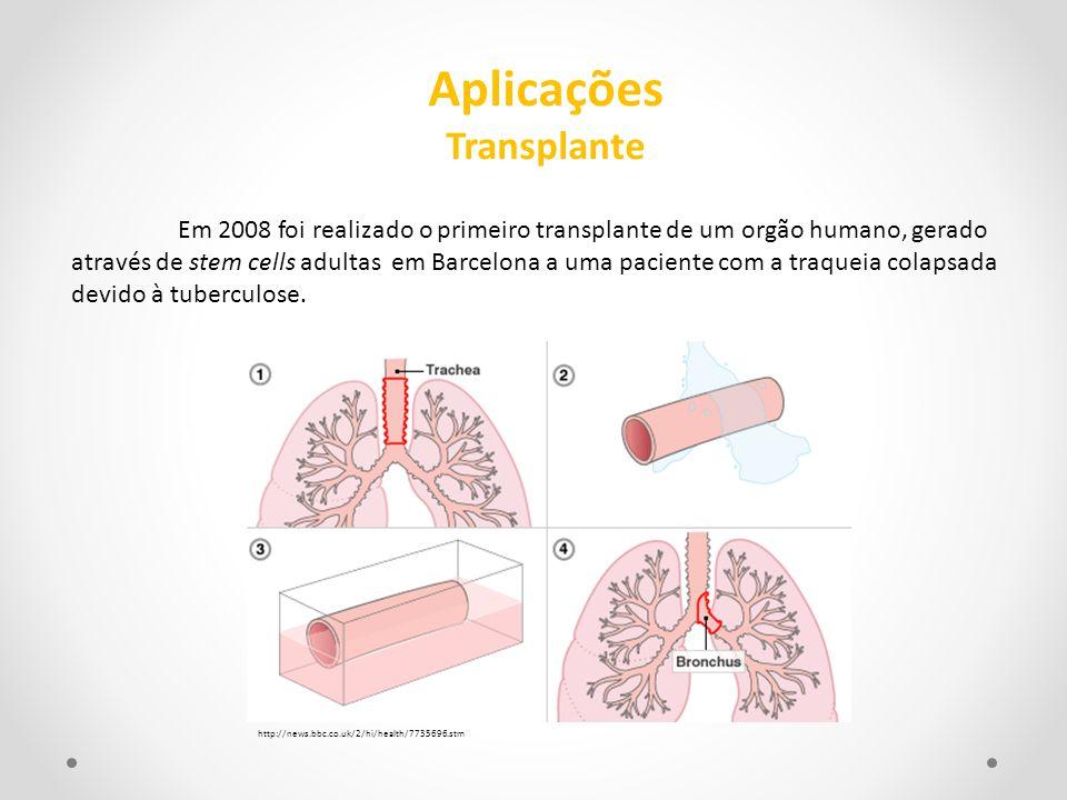Aplicações Transplante