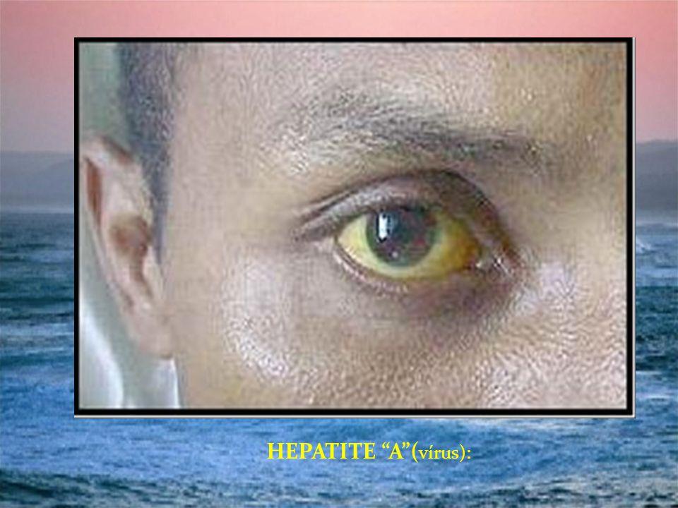 HEPATITE A (vírus):