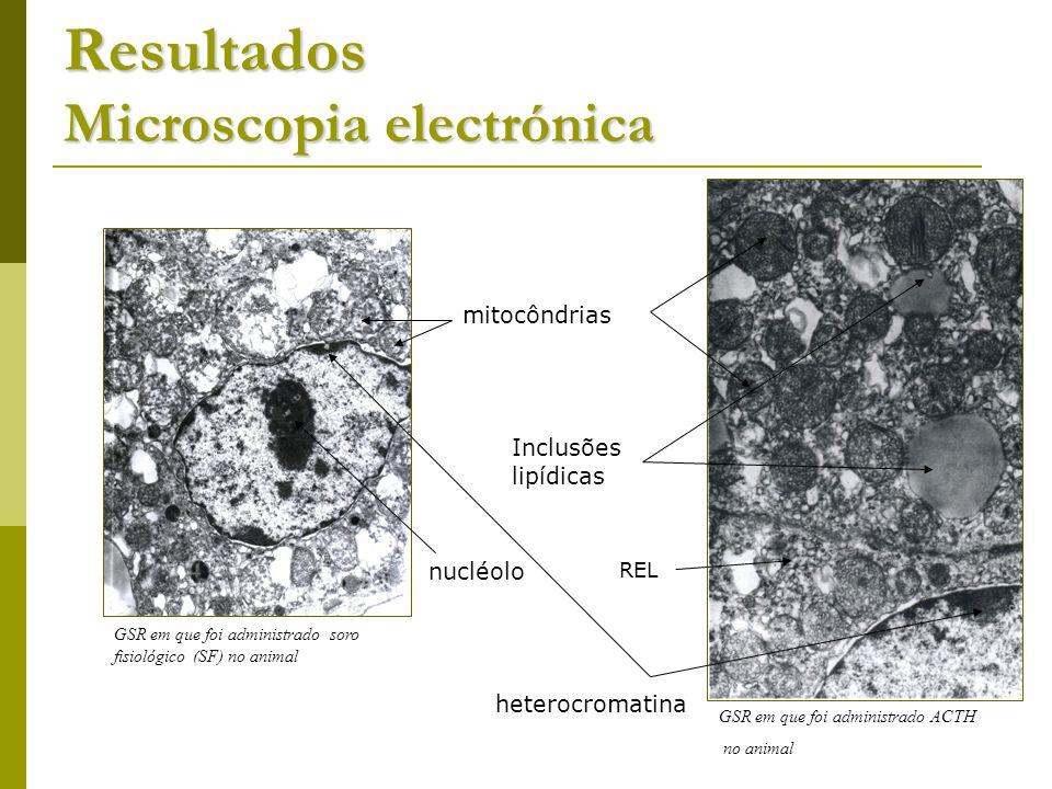 Resultados Microscopia electrónica