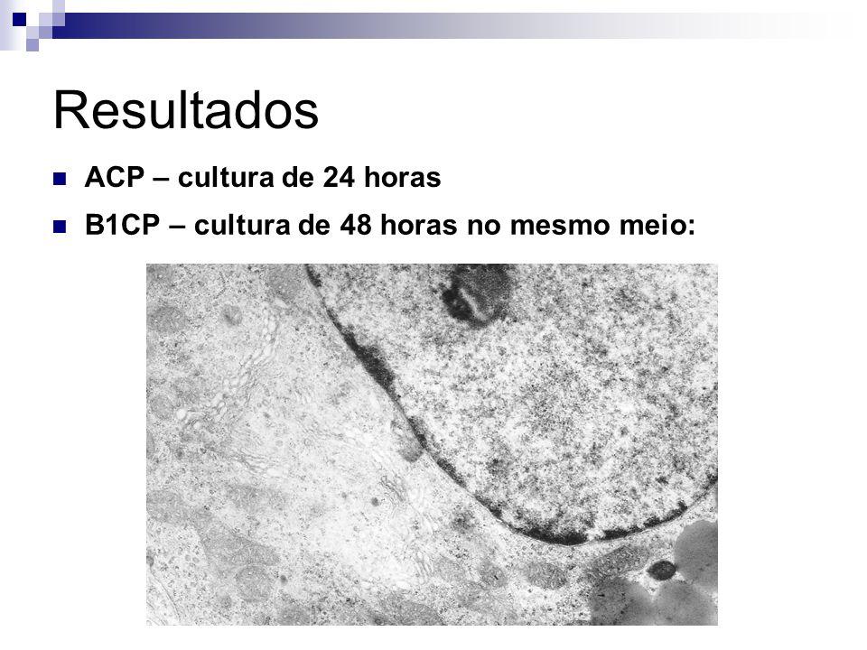 Resultados ACP – cultura de 24 horas