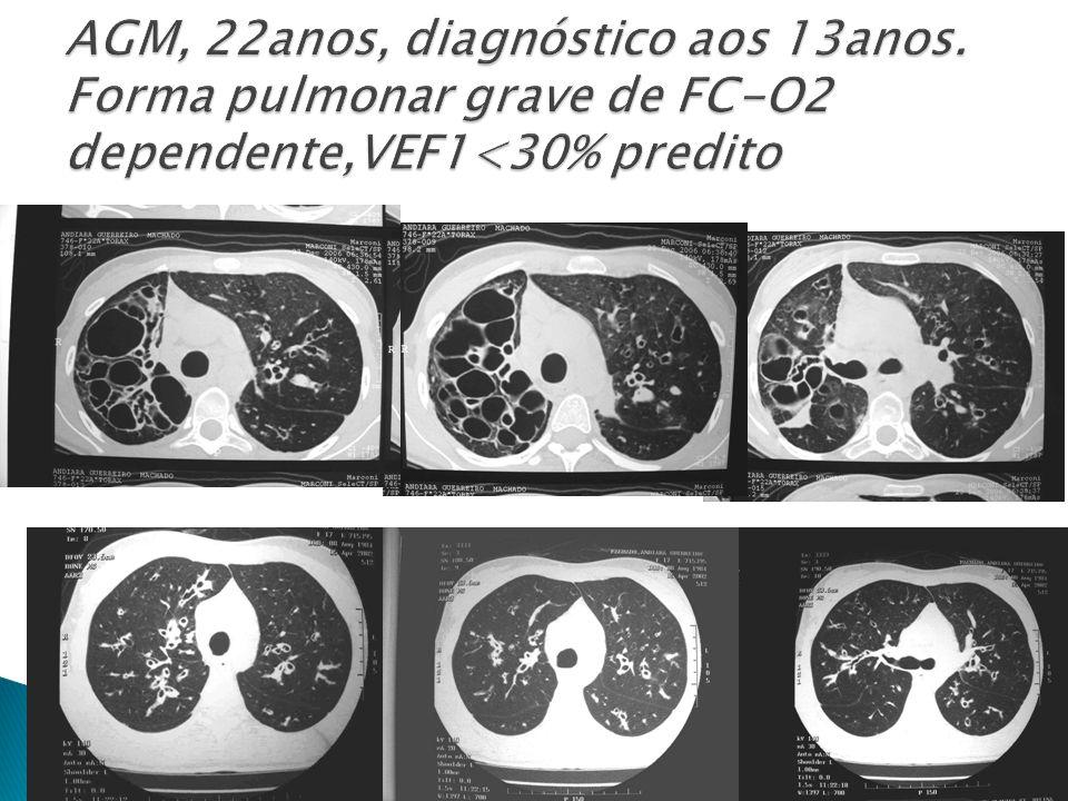 AGM, 22anos, diagnóstico aos 13anos