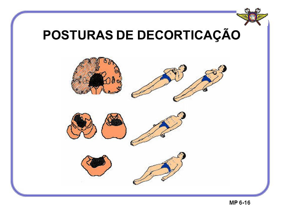 POSTURAS DE DECORTICAÇÃO