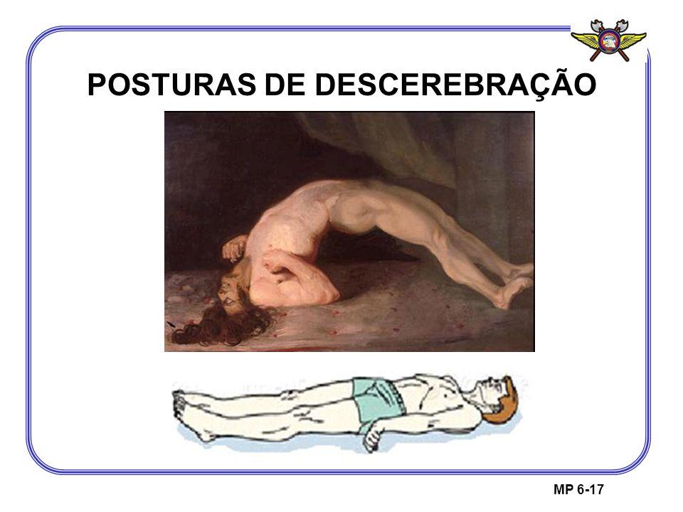 POSTURAS DE DESCEREBRAÇÃO