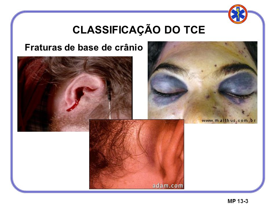 CLASSIFICAÇÃO DO TCE Fraturas de base de crânio MP 13-3