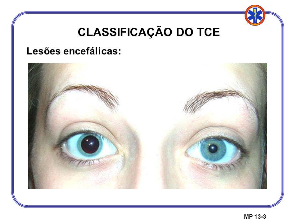 CLASSIFICAÇÃO DO TCE Lesões encefálicas: MP 13-3