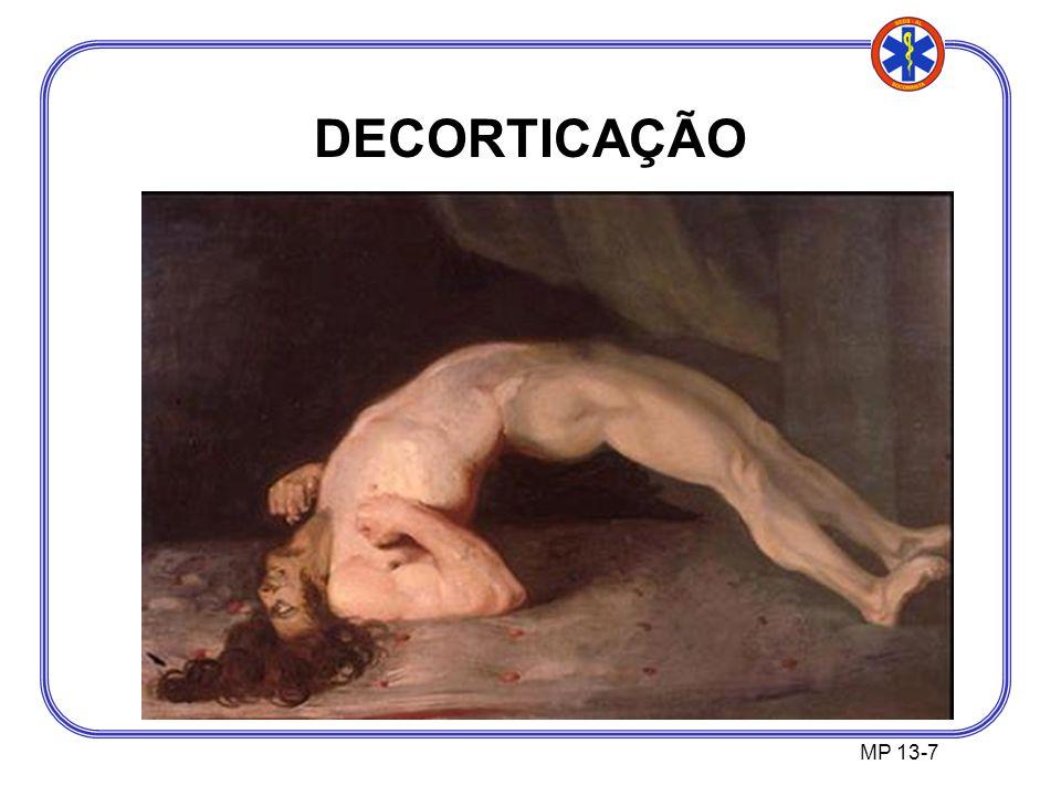 DECORTICAÇÃO MP 13-7