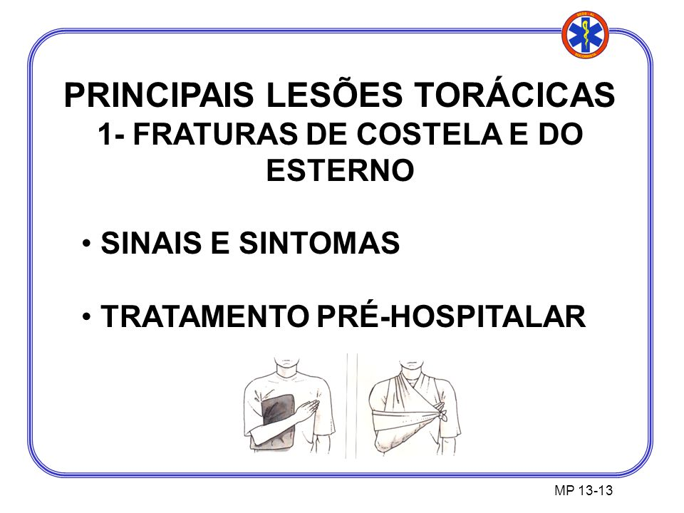 PRINCIPAIS LESÕES TORÁCICAS 1- FRATURAS DE COSTELA E DO ESTERNO