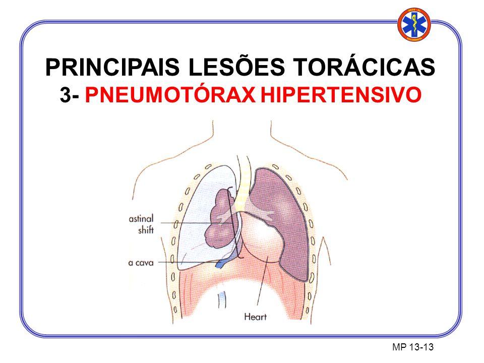 PRINCIPAIS LESÕES TORÁCICAS 3- PNEUMOTÓRAX HIPERTENSIVO
