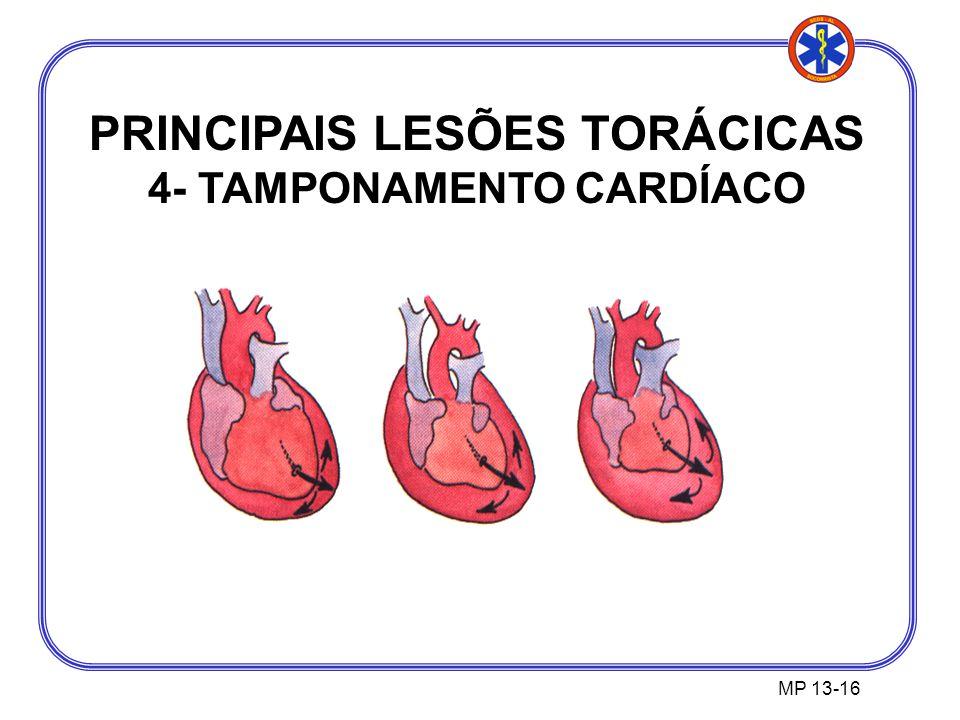 PRINCIPAIS LESÕES TORÁCICAS 4- TAMPONAMENTO CARDÍACO