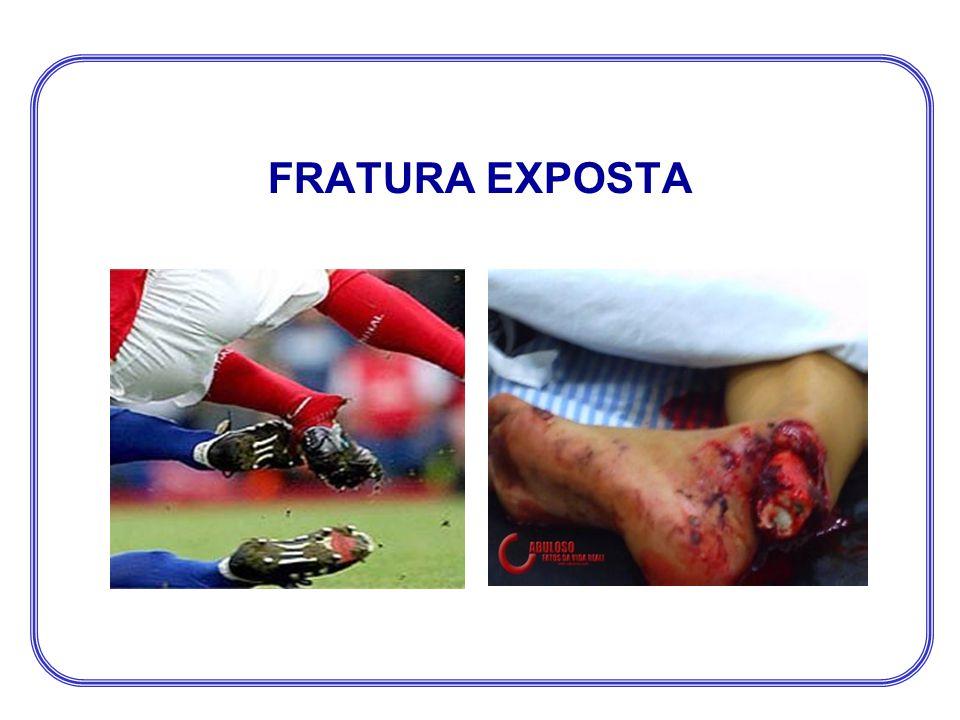 FRATURA EXPOSTA