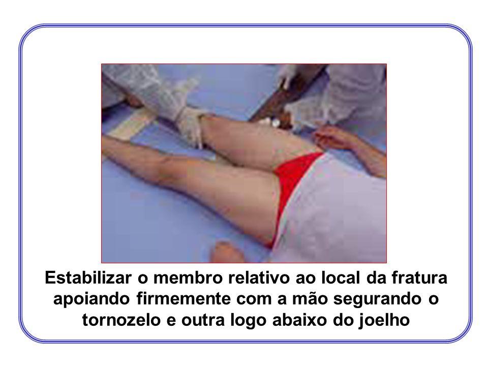 Estabilizar o membro relativo ao local da fratura apoiando firmemente com a mão segurando o tornozelo e outra logo abaixo do joelho