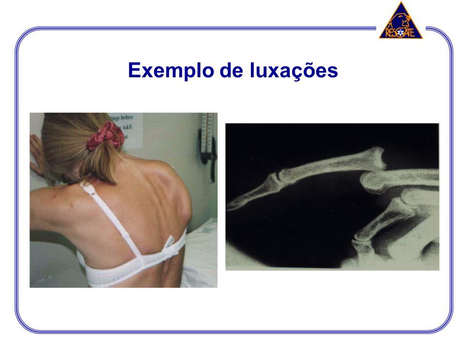 Exemplo de luxações