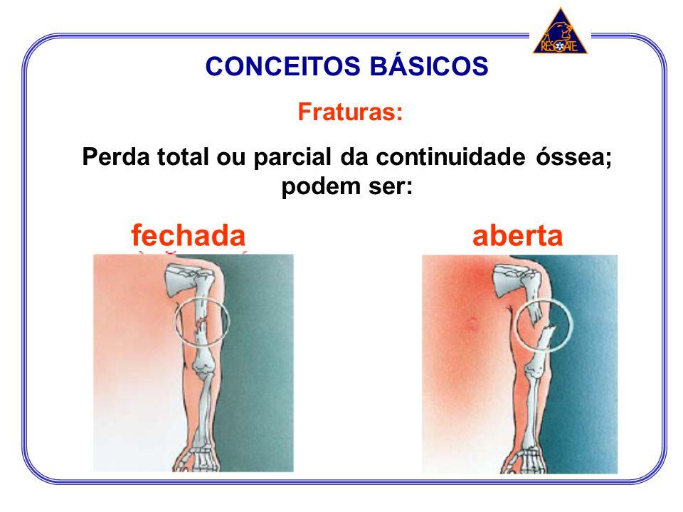 Perda total ou parcial da continuidade óssea; podem ser: