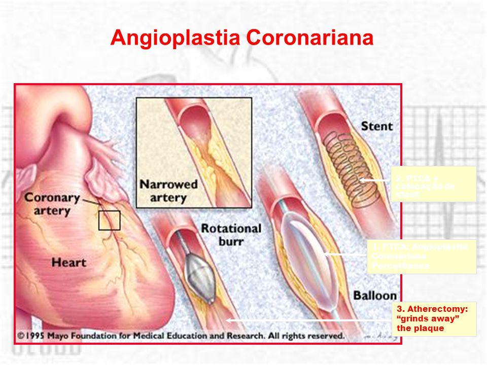 Angioplastia Coronariana