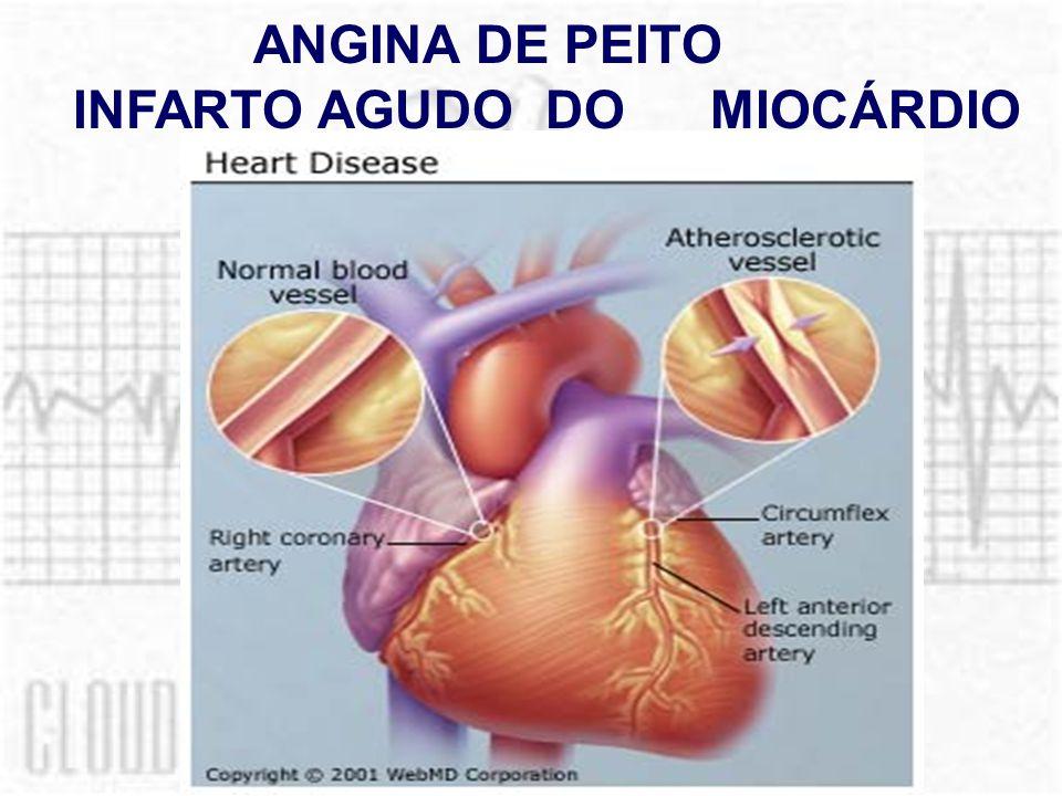ANGINA DE PEITO INFARTO AGUDO DO MIOCÁRDIO